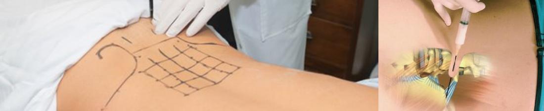 Proloterapi Tedavisi Nasıl Yapılır?